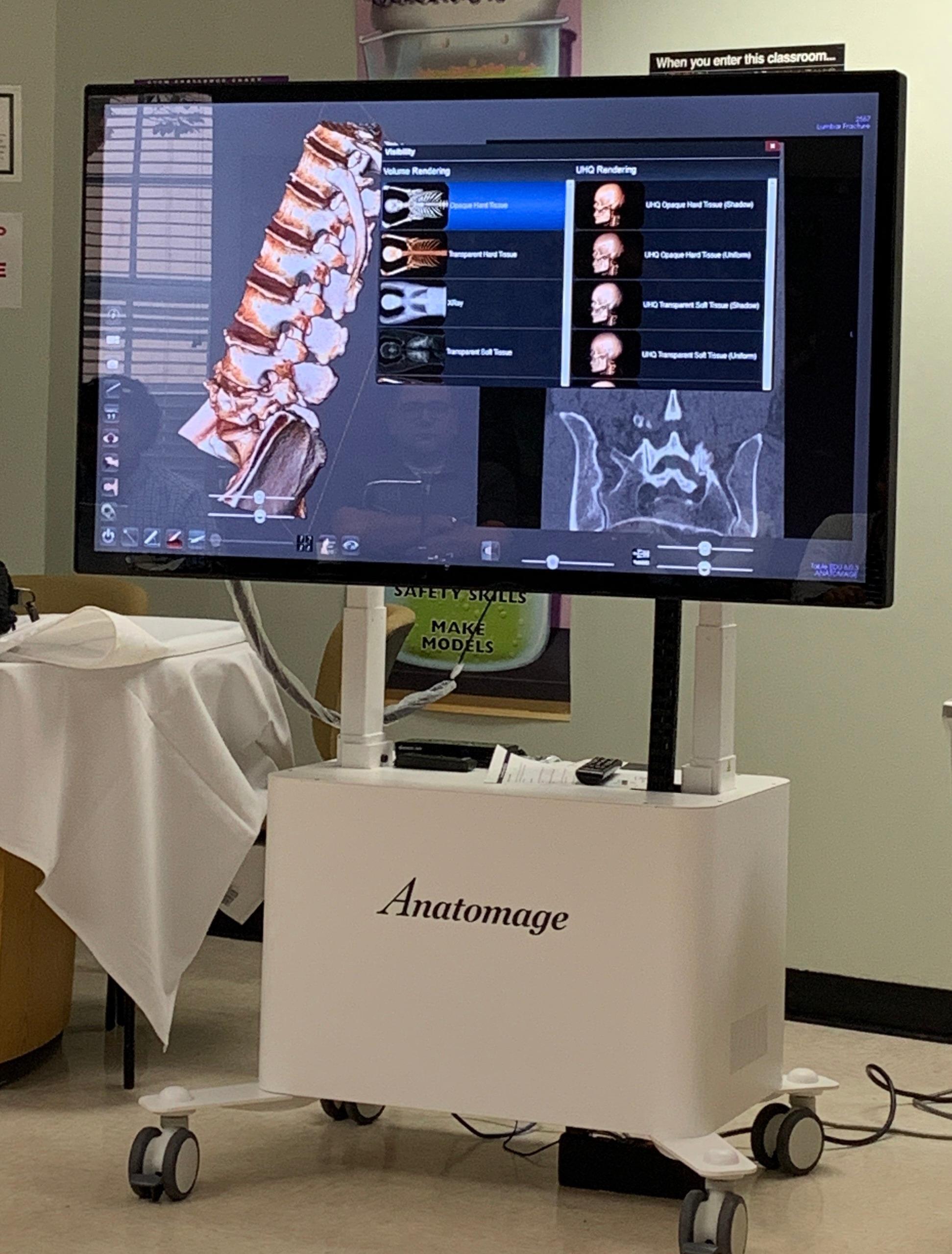 Anatomagetable4